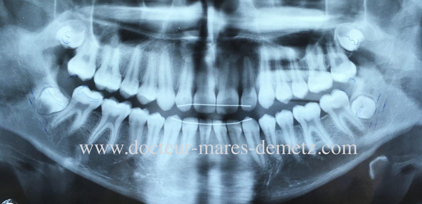 dent de sagesse orthodontie encombrement postérieur