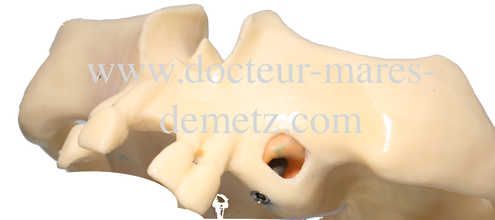 sinus lift et implant
