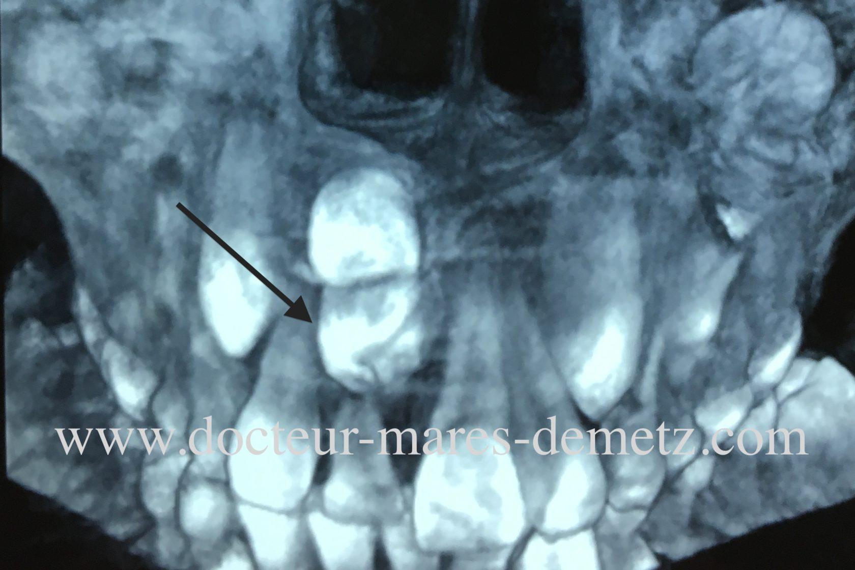 dent surnuméraire retard éruption d'une incisive médiane supérieure droite : dent définitive