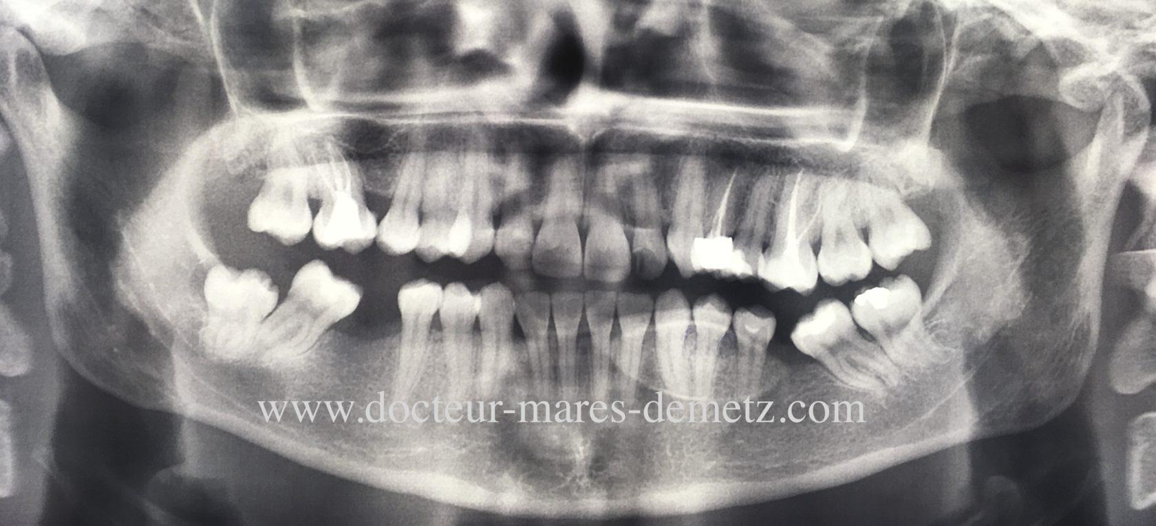 panoramique dentaire: ostéome torus